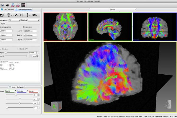Imeka Image Brain