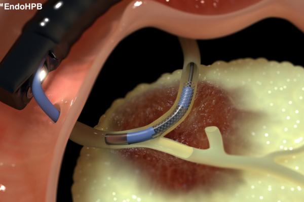 Emcision outil image